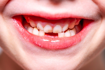 Why Missing Teeth Must Be Replaced