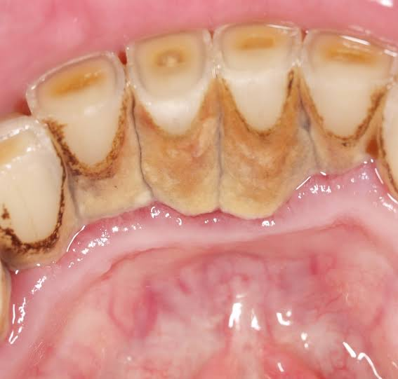 What are the Effects of calculus Deposits on the teeth