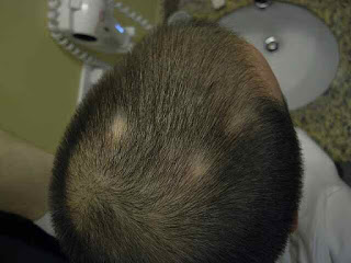 Alopecia areata: What is the, Diagnosis, and How is it Tested