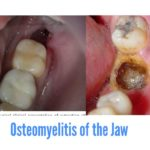 Osteomyelitis of the jaw