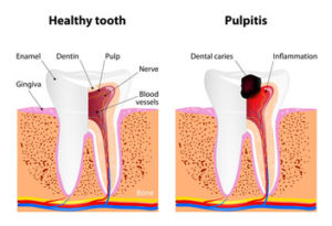 dental-pulpitis-pulp-diseases