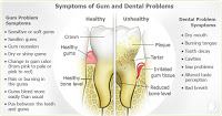 Gingivitis common dental problems