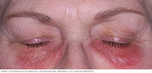 latex allergy: Image showing contact dermatitis on the face