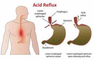 Natural Solutions for Treatment of Chronic Acid Reflux Problem