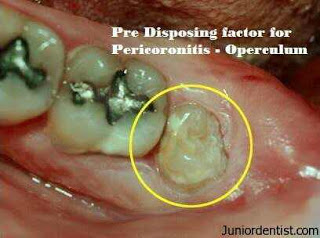 Pericoronitis: Causes, Symptoms, Treatment and Prevention