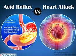 Importance of Resolving Chronic Indigestion Issues to Avoid Acid Reflux