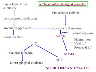 NECROTIZING ULCERATIVE GINGIVITIS 2