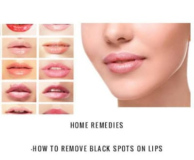 Home Remedies: How to Remove Black Spots On Lips