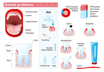 Are there ways to avoid dental problems