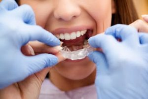 Orthodontics Treatment: Will clear aligners, like Invisalign, work for you? 3