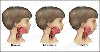 Mandibular-Hypoplasia-Causes-Symptoms-Diagnosis