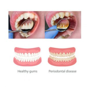 PERIODONTAL DISEASE: CAUSES, SYMPTOMS, AND TREATMENT