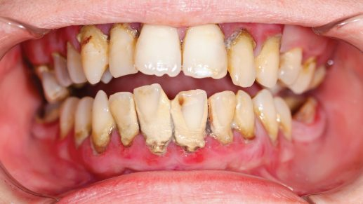 Periodontal Disease: Causes, Symptoms and Home Treatment.