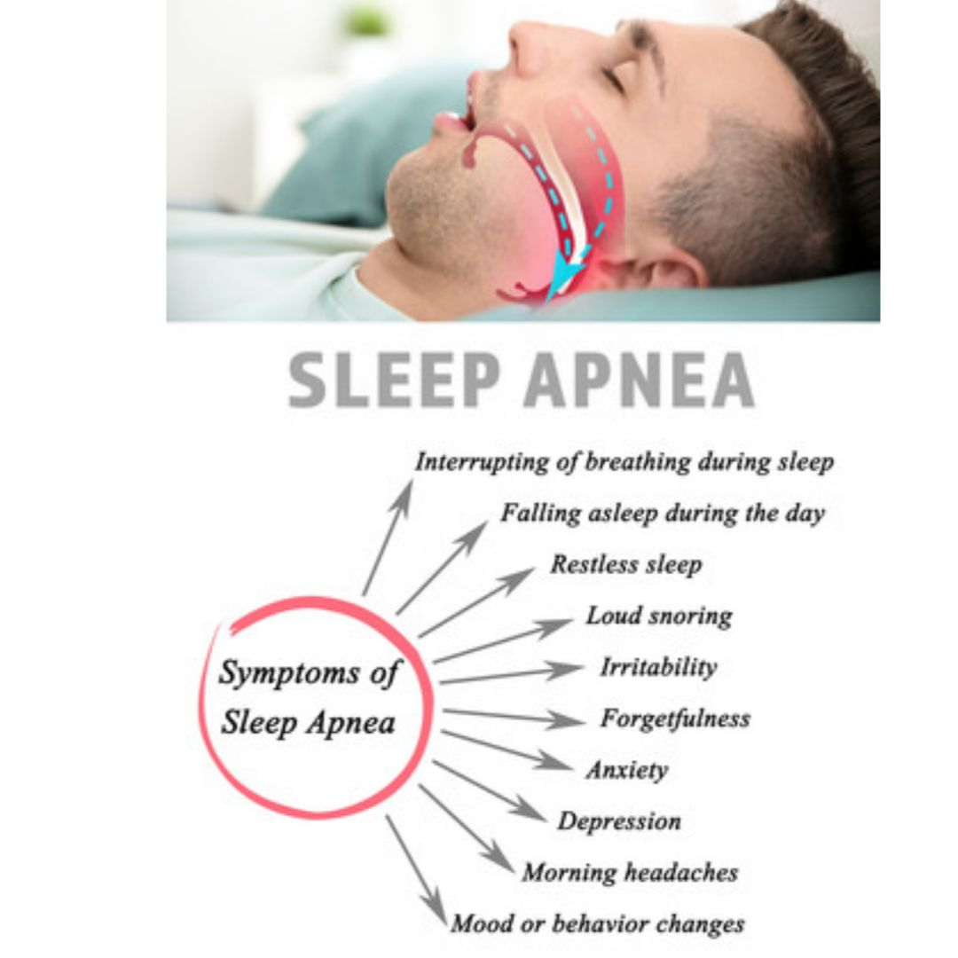 How to Cure Sleep Apnea Naturally at Home Without CPAP?