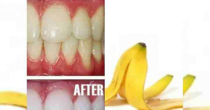 Banana peel for teeth: 6 proven ways to whitening teeth with banana peel 6