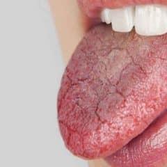 Dry-Mouth-Xerostomia