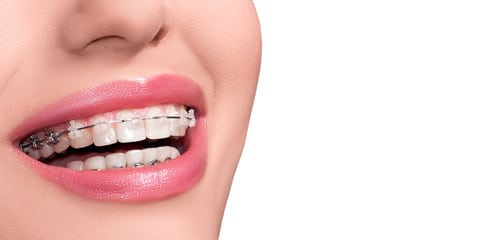 What You Need to Know About Malocclusion and How to Treat It 3