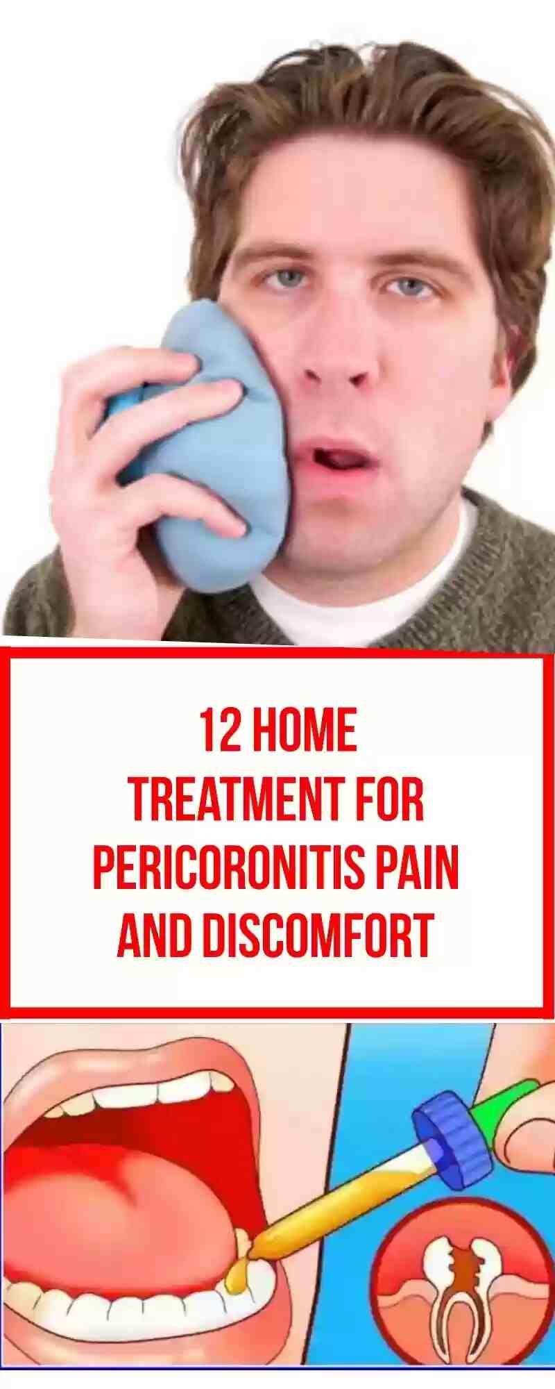 pericoronitis home treatment