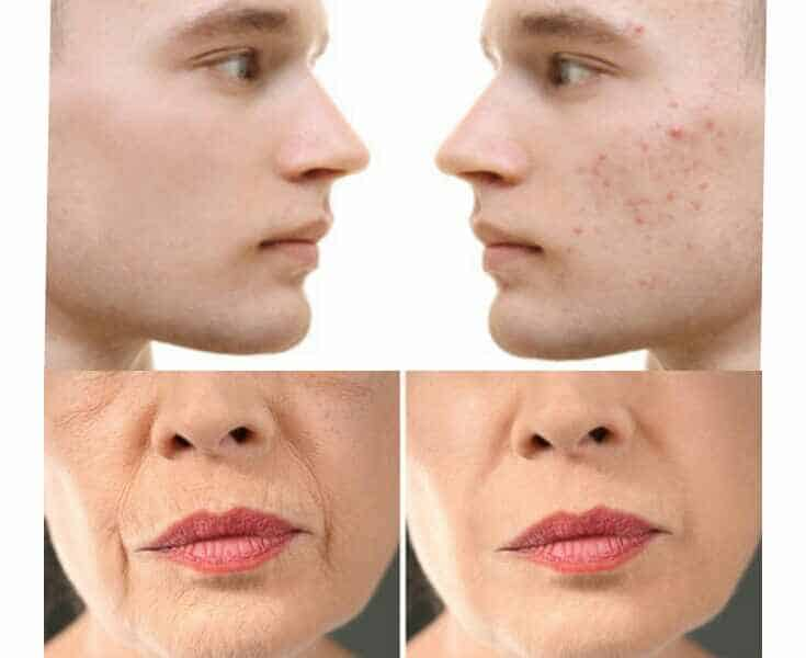 Tretinoin Supatret Gel-Get Rid of Acne and Wrinkles