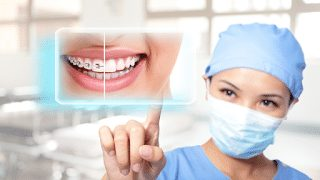 What You Need to Know About Porcelain Veneers And Dental Lumineers 1