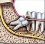 Wisdom Teeth or Impacted Tooth