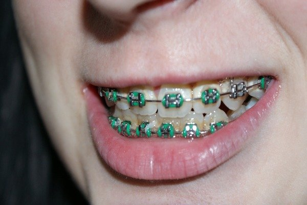 9 Major foods to avoid if you have dental braces on!