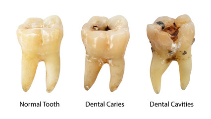How Can You Prevent Tooth Decay and Infection?