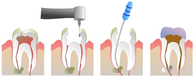 Root Canal -Treatment & Procedure.