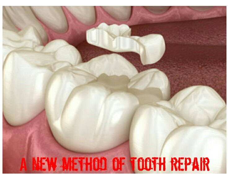 Study: Science as discovered a way to repair tooth for Future treatment.