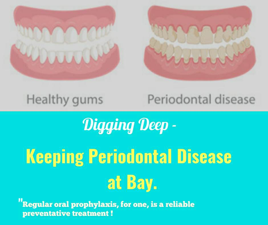 Digging Deep - Keeping Periodontal Disease at Bay 4