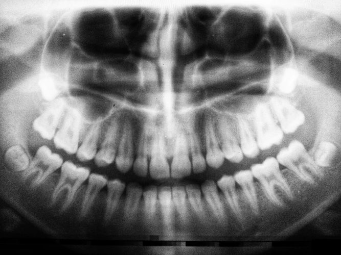 5 Amazing Reasons to get a dental crown 1