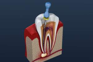 root canal treatment for damaged teeth