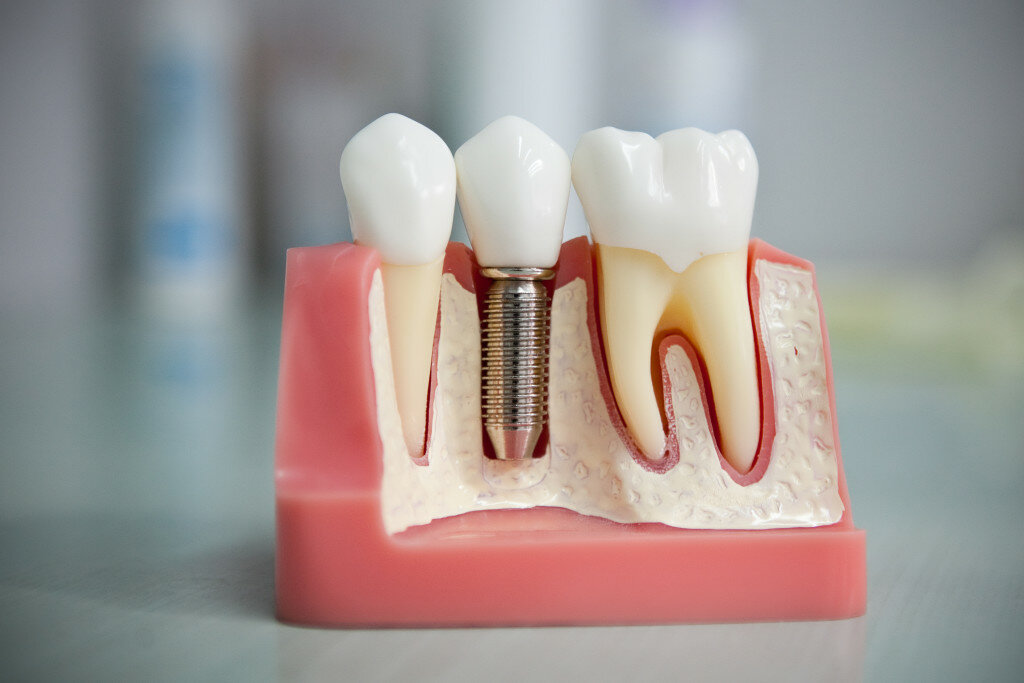 Dental Implants and Prostheses Analysis 5