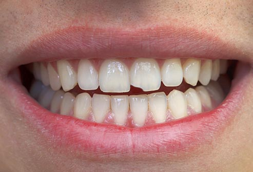 Dental Problems that Should Never Go Untreated