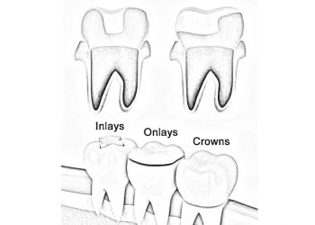 ABOUT DENTAL INLAYS AND ONLAYS: RESTORE DAMAGED TEETH