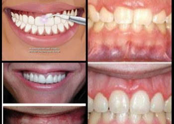 Why Your teeth are so vital to your health 2