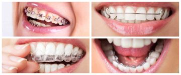 Getting Braces Soon? Here's A Guide On Different Kind Of Braces