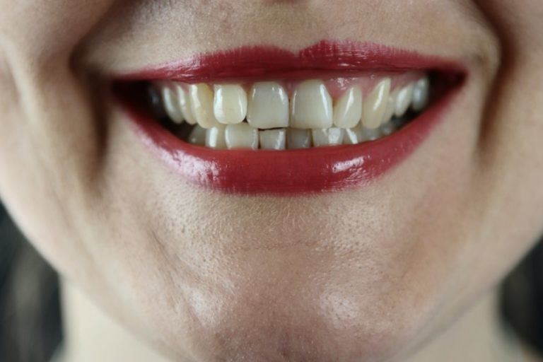 Tooth Be Told - 5 Things Your Dentist Wishes You Would Do For Your Teeth
