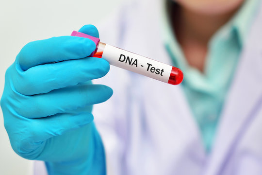 4 Things You Need To Know Before Taking a Home DNA Test