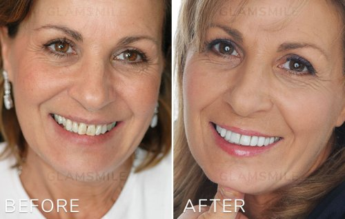 How Porcelain Veneers Melbourne Can Change Your Life?
