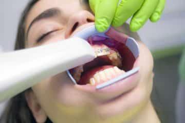 Universities to Study Dentistry