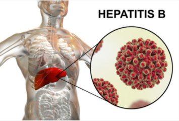 Hepatitis B cost in nigeria