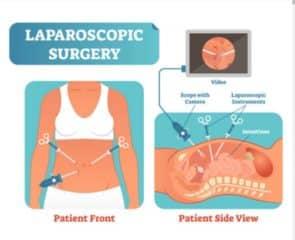 Cost of Laparoscopy in Nigeria