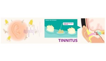 top-hearing-aids-to-use-for-tinnitus
