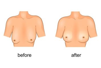Breast lift – an alternative to breast implant