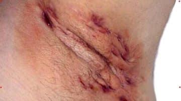Pimple-like bump ob clitoral hood (causes)