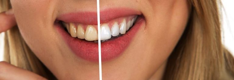 How Long Does It Take to Whiten My Teeth?